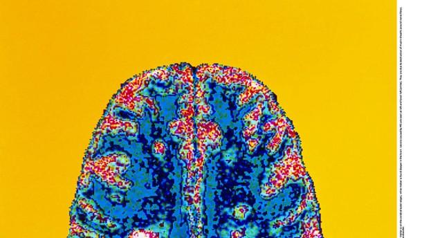 233 Gen-Risiken für Multiple Sklerose