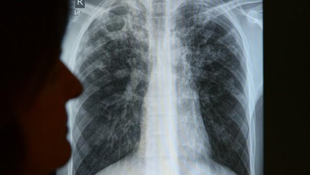 Tuberkulose tödlicher als HIV und Malaria
