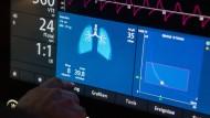 Teuer und begehrt: Ein Arzt bedient eine Beatmungsmaschine auf einer Intensivstation. Doch es gibt möglicherweise eine improvisierte Alternative.