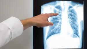Nach Tuberkulose-Fällen in Schule rechnet Behörde mit mehr Erkrankten