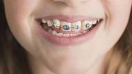 Früher unbeliebt, heute für viele ein modisches Accessoire: Die Zahnspange verheißt den Eintritt in eine neue Lebenphase.
