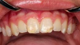 Wenn die Zähne anfangen zu bröckeln