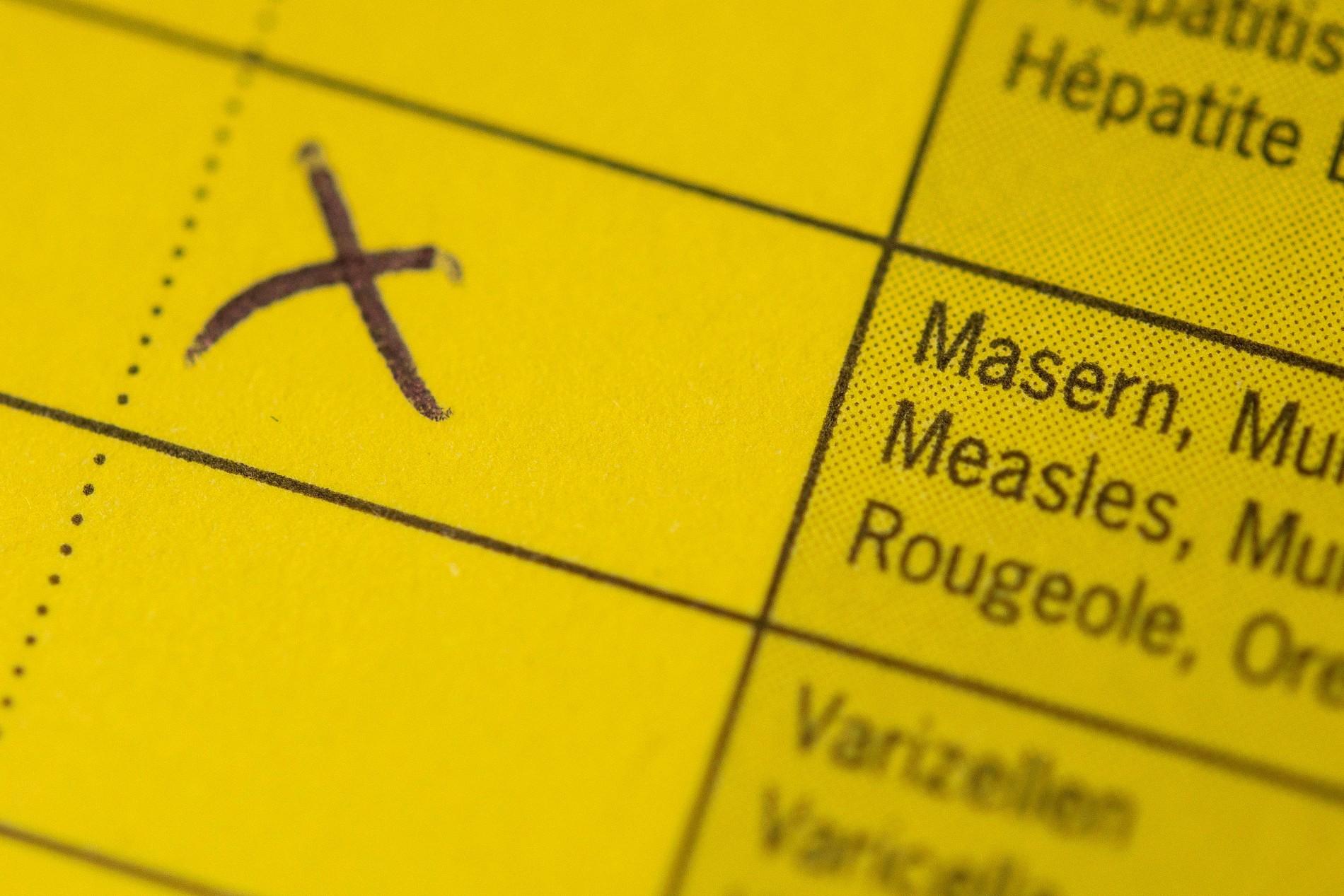 Vene safene: ce rol au si cum sunt afectate de varice