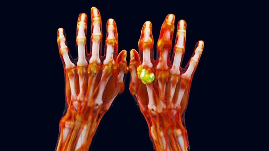 Durchleuchtete Hände: Die Folgen einer Gichterkrankung sind grün hervorgehoben.