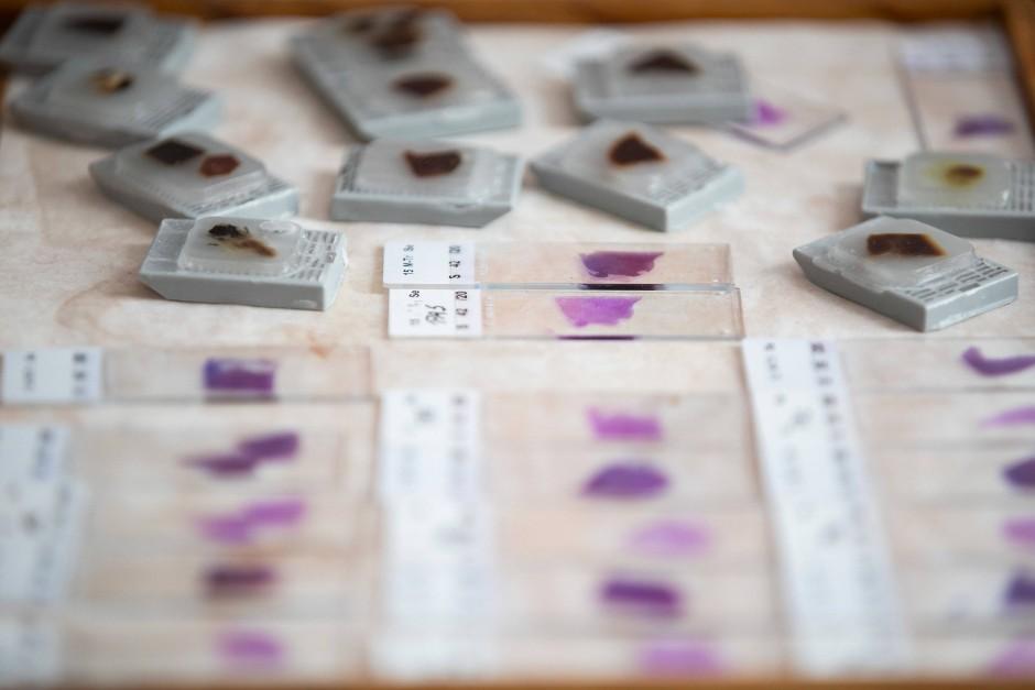 Auf  Objektträgern werden Teile des menschlichen Gewebes befestigt, um sie unter dem Mikroskop zu betrachten.