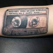 Die Musikkassette auf seinem Oberarm half Daniel, die Angst vor seiner Krankheit zu überwinden.