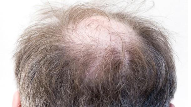 Kosmetisch das Mittel für das Haar