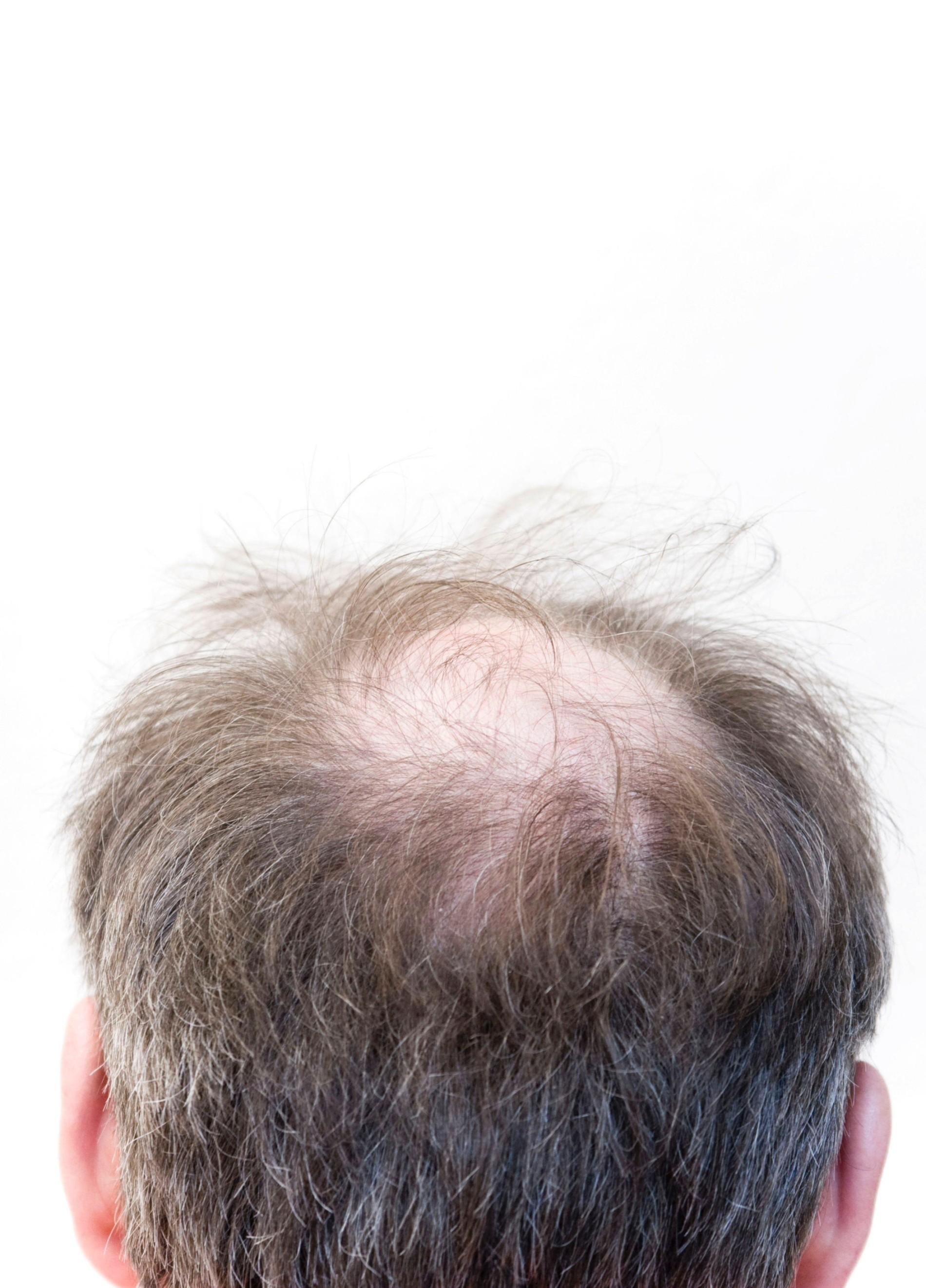 Geheimratsecken regain Hair transplant