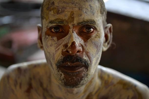 21. August 2014. Ein Inder in Neu-Delhi hat Bleicherde auf seinen Körper aufgetragen. Sie soll eine von Moskitostichen hervorgerufene Hautkrankheit heilen.
