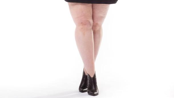 Mehr als einfach dicke Beine