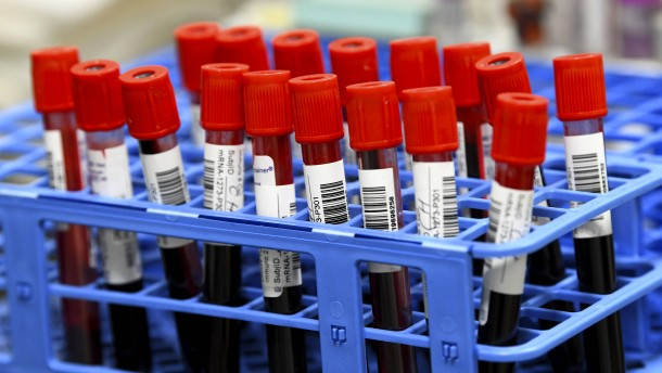 Zweiter Corona-Impfstoff in Amerika zugelassen