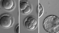 Die Bilder der der Oregon Health and Science University zeigen, wie die Forscher mit Hilfe der Genschere namens CRISPR-Cas9 ein defektes Gen entfernen.