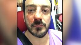 Homosexuelle auf offener Straße verprügelt
