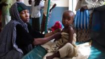 Trotz sinkender Todeszahlen bleibt die Lage prekär: Ein unterernährtes Kind in Somalia