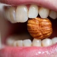 Eine Frau hält einen Haselnusskern zwischen den Zähnen. Kuhmilch, Weizen oder Nüsse – darauf reagieren manche Menschen heftig.