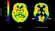 Demenz: Nicht immer ist Alzheimer der Grund, wie bei dem rechten Gehirn auf dieser Aufnahme