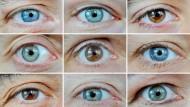Selbstlernende Algorithmen können zuverlässig Augenleiden diagnostizieren.