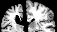 Geschrumpftes Gehirn (links) eines Alzheimeropfers, rechts die Hirnhälfte eines gesunden Gleichaltrigen.
