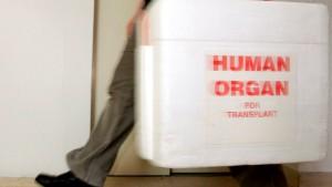 Streit über Reform des Transplantationswesens