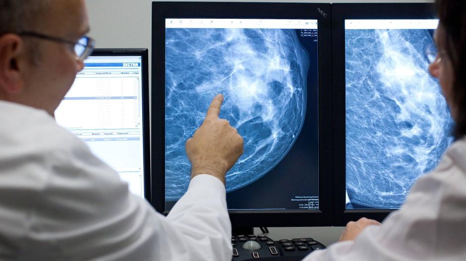 Ein Ärzteteam kontrolliert das Röntgenbild einer weiblichen Brust.
