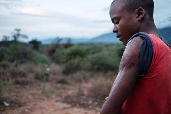 Mdududzi Gcina, 14, was four years old when a Moçambique spitting cobra caught him.  It took several operations to save the arm, and his case encouraged Thea to do something about snake bites.