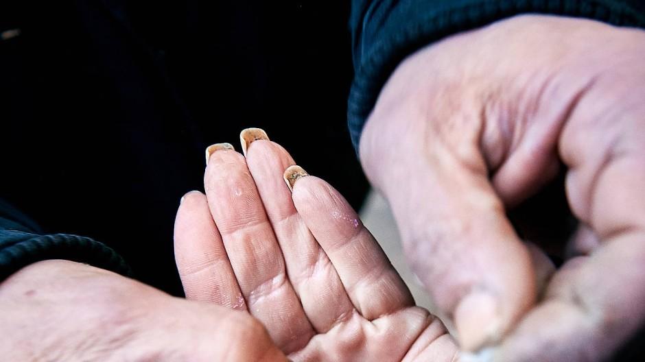 Frankfurter Weg: Drogenabhängige können in sicheren Räumen ihre Suchtmittel einnehmen.