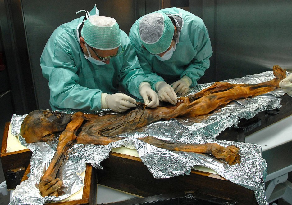"""Wissenschaftler untersuchen 2010 die rund 5000 Jahre alte Gletschermumie """"Ötzi"""" und entnehmen Proben des Mageninhaltes."""