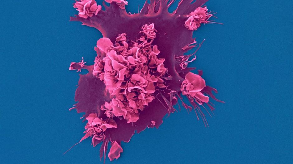 Bild einer menschlichen Immunzelle