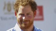 """Auch wenn bei Prinz Harry alles voller roter Haare ist, als alleiniger Beweis für eine Vaterschaft reicht das kaum aus. Als Grundlage für ein """"Sensations-Gerücht"""" genügt es aber natürlich."""
