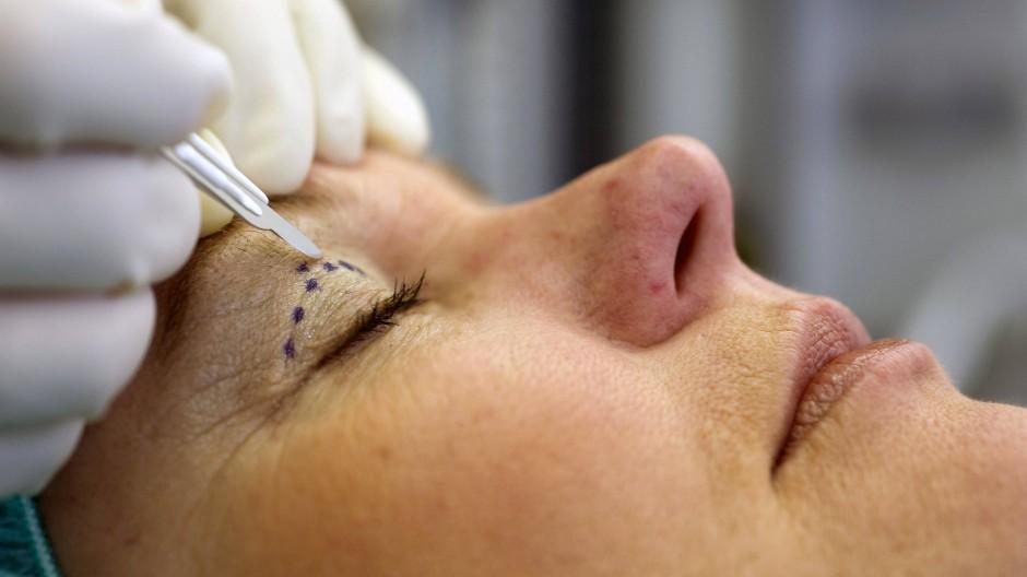 Ein Schönheitschirurg setzt in Hamburg das Skalpell an einer zuvor markierten Stelle am Augenlid der Patientin an.