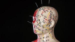 Die Geschichte meiner Kopfschmerzen