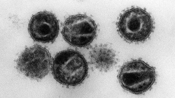 Forscher entfernen Aids-Erreger aus Erbgut