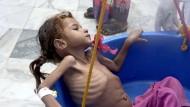 Ein stark unterernährtes Mädchen in einem Gesundheitszentrum im Jemen