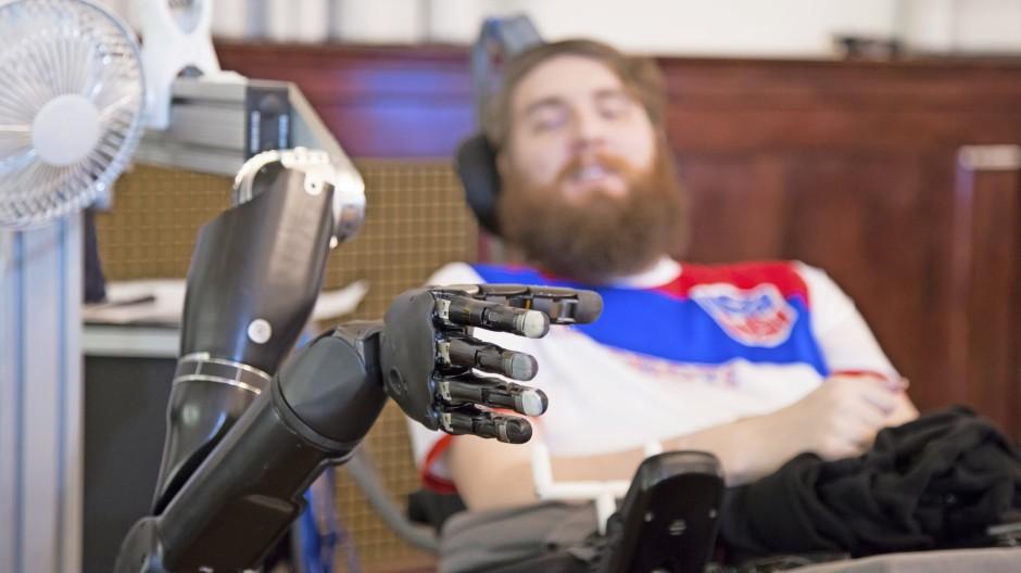 Der an Beinen und Armen gelähmte Nathan Copeland steuert allein mit seiner Vorstellungskraft den Roboterarm.