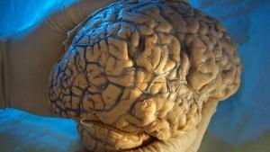 Alzheimer-Forscher wollen an die Börse