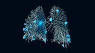 Metastasen im Gefäßnetz einer Lunge. Hier hat der Computer oft das bessere Auge.