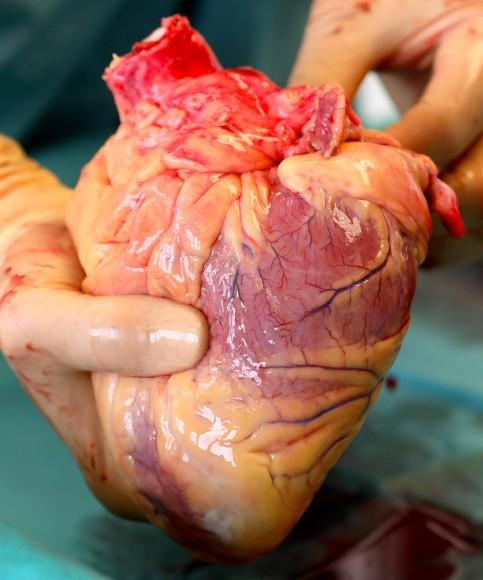 Bild zu: Herz-Kreislauf-Attacken: die Ursachen von Herzinfarkten ...