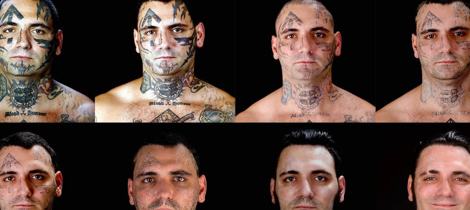 Tattoos Mit Laser Zu Beseitigen Kann Ungesund Sein