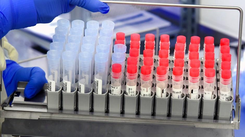 PCR-Proben im Labor zur Untersuchung auf Virusvarianten