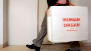 Chirurg fälscht Liste für Organtransplantation