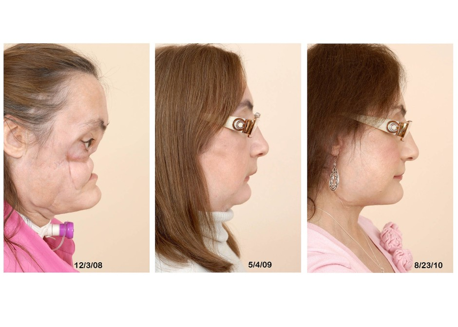 Fotos der Cleveland Klinik zeigen Connie Culp vor und nach der Transplantation sowie nach einer abschließenden Operation im August 2010.