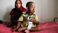 Vierjähriger Greis gibt Ärzten Rätsel auf