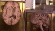 In einer belgischen Gemeinde lagern fast 3000 Gehirne