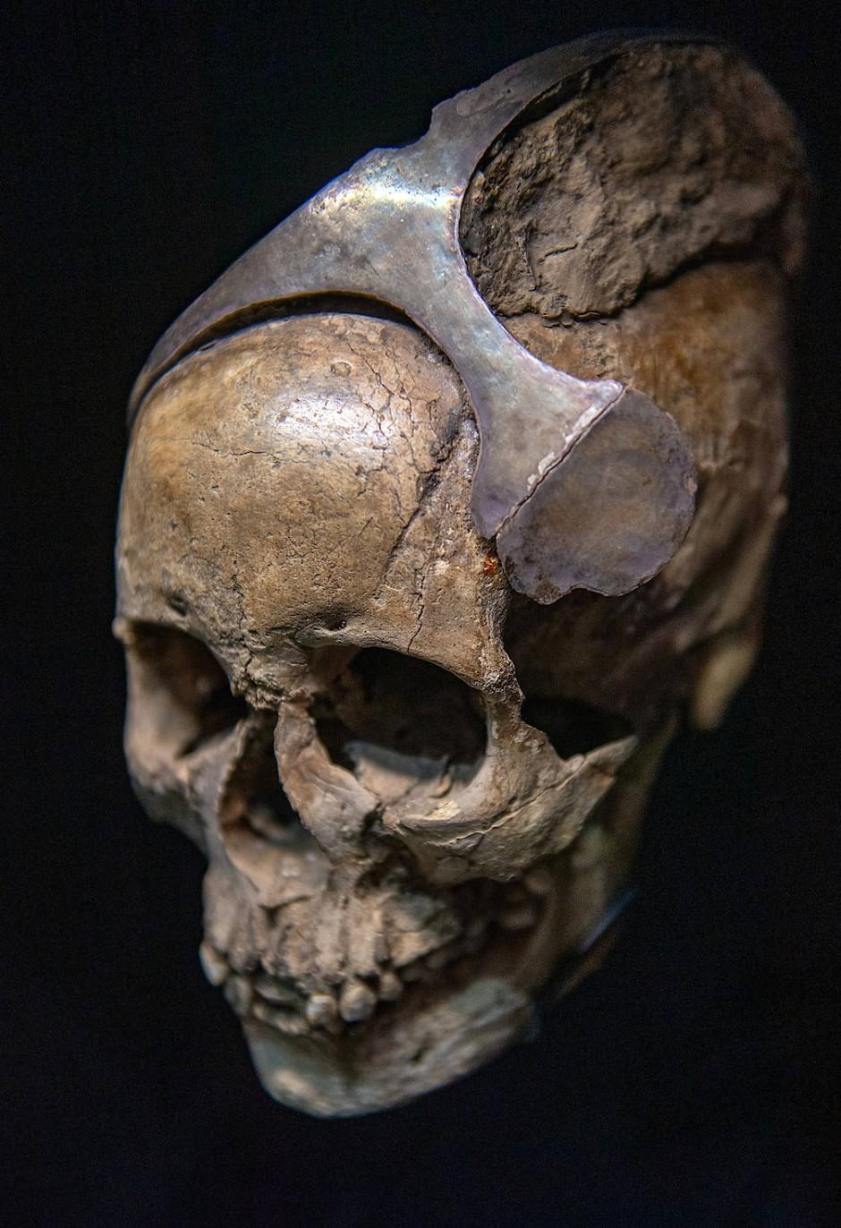 Die Herrscherin trug Silber: Schädel mit Diadem aus El Argar in Südspanien