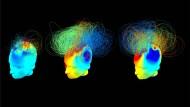 Signale des Bewusstseins, im Computer rekonstruiert: links ein fast bewusstloser Komapatient, rechts ein Gesunder, in der Mitte ein Komapatient mit Bewusstsein.