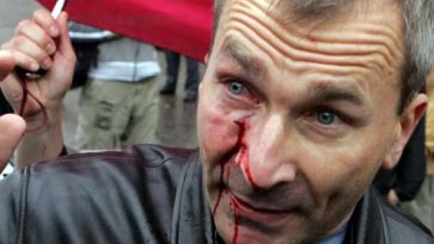 Merkel distanziert sich von Kritik an Volker Beck