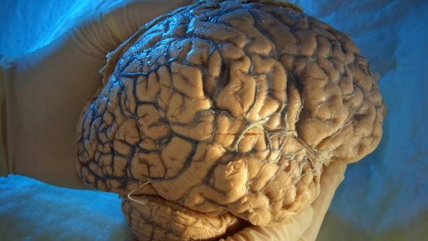 Lässt sich Alzheimer entsorgen?