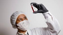 Coronavirus kann vor ersten Symptomen übertragen werden