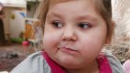 41 Millionen kleine Kinder zu dick