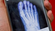Guter Ansatz, unzureichende Absicherung: Mit Vivy kann das Röntgenbild unkompliziert mit dem Arzt geteilt werden.
